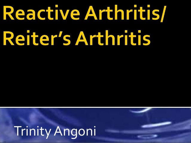 Septic arthritis.