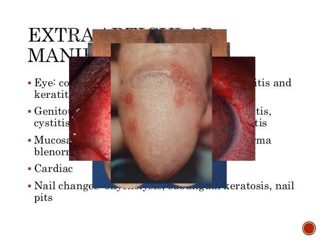  Eye: conjunctivitis, anterior uveitis, episcleritis and keratitis  Genitourinary: urethritis, cervicitis, prostatitis, ...