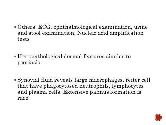  Others: ECG, ophthalmological examination, urine and stool examination, Nucleic acid amplification tests  Histopatholog...