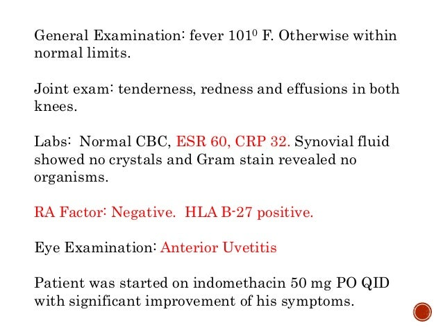 General Examination: fever 1010 F. Otherwise within normal limits. Joint exam: tenderness, redness and effusions in both k...