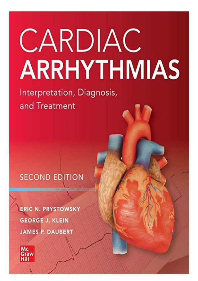 if you want to download or read Cardiac Arrhythmias: Interpretation, Diagnosis and Treatment, Second Edition, click button...