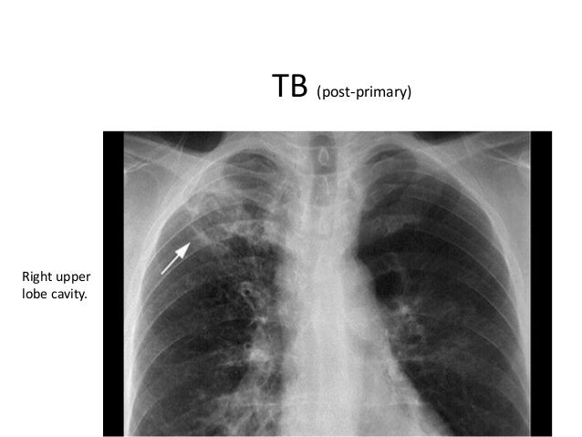 What does tb look like on x ray