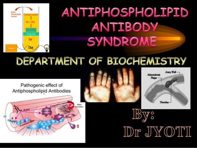Antiphospholipid syndrome was described in full in the 1980s, aftervarious previous reports of specificantibodies in peopl...