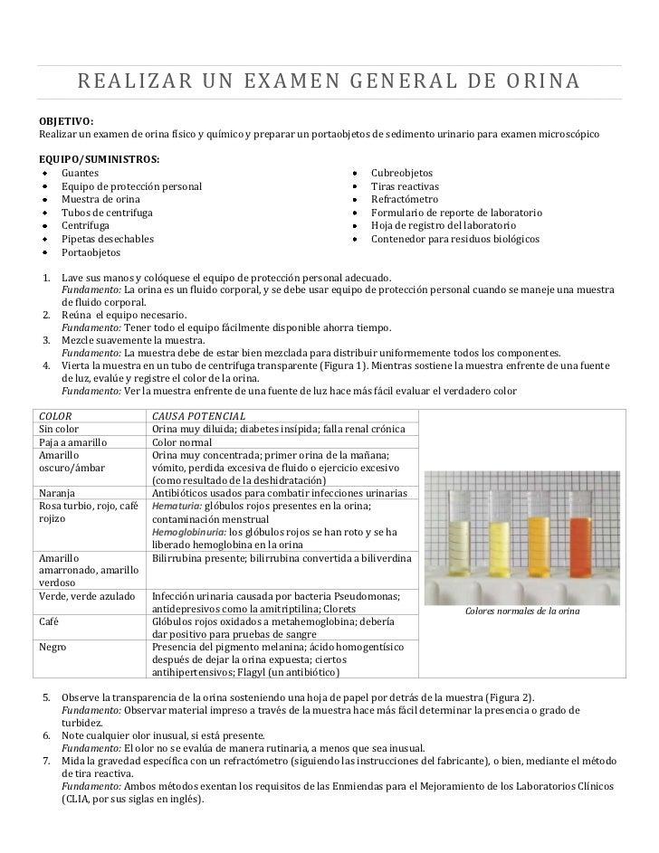REALIZAR UN EXAMEN GENERAL DE ORINAOBJETIVO:Realizar un examen de orina físico y químico y preparar un portaobjetos de sed...