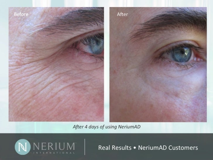 Nerium Real Results Presentation - GET $30 CUSTOMER DISCOUNT