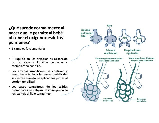 Reanimación neonatal Generalidades