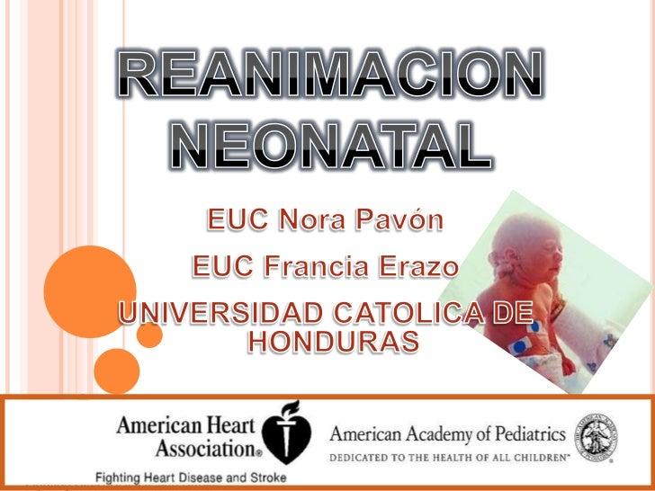 REANIMACION NEONATAL<br />EUC Nora Pavón<br />EUC Francia Erazo<br />UNIVERSIDAD CATOLICA DE HONDURAS<br />