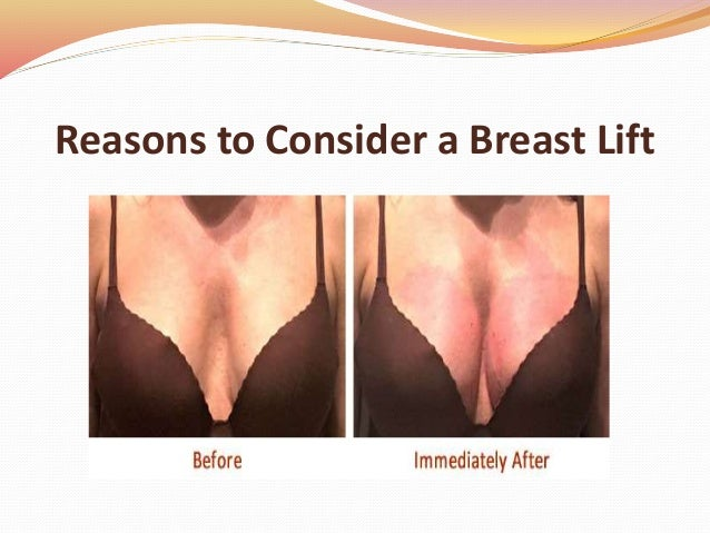 Reasons to Consider a Breast Lift