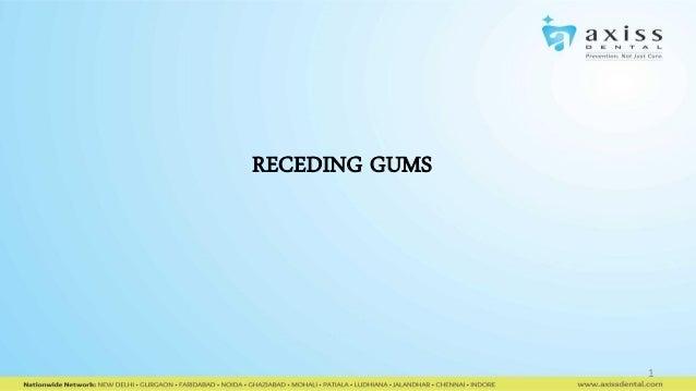 RECEDING GUMS  1