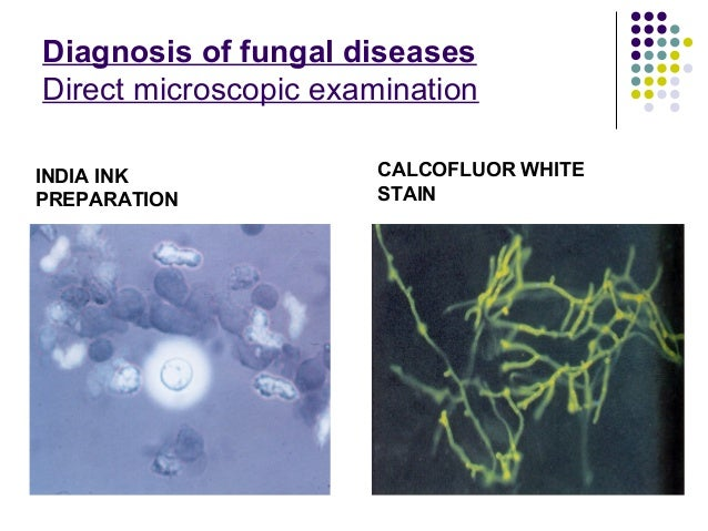 Recent advances in fungal infections