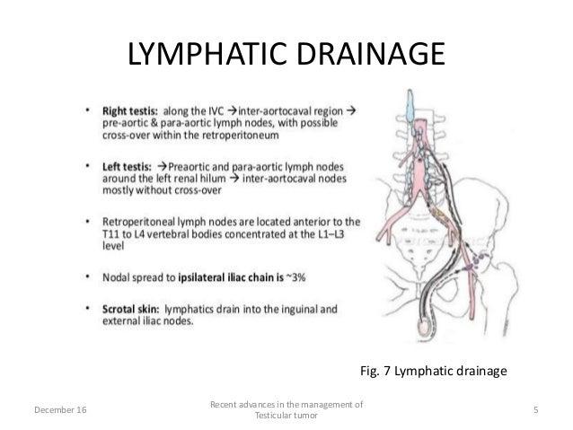 Testis Cancer Lymph Node Diagram - Wiring Library •