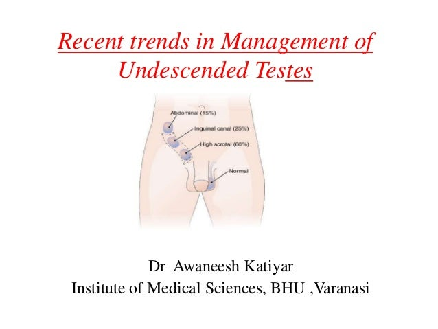 Recent trends in Management of Undescended Testes Dr Awaneesh Katiyar Institute of Medical Sciences, BHU ,Varanasi