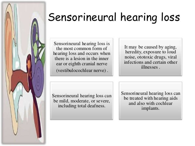Image result for Sensorineural hearing loss