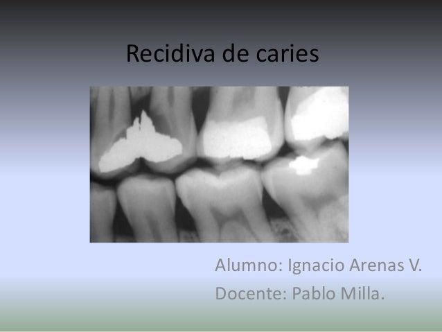 Recidiva de caries Alumno: Ignacio Arenas V. Docente: Pablo Milla.