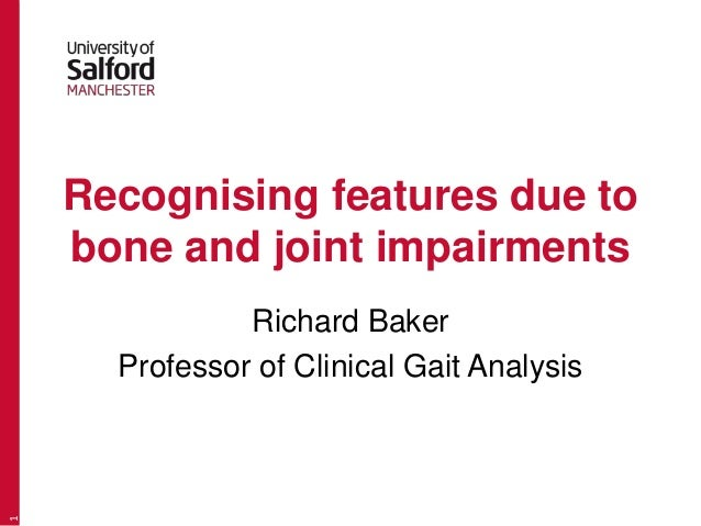Recognising features due to bone and joint impairments Richard Baker Professor of Clinical Gait Analysis 1