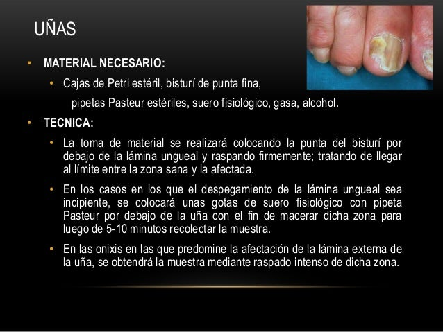 • MATERIAL NECESARIO:• Cajas de Petri estéril, bisturí de punta fina,pipetas Pasteur estériles, suero fisiológico, gasa, a...