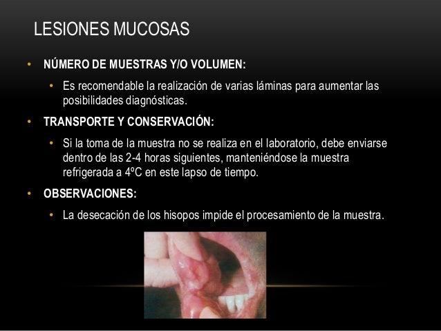 • NÚMERO DE MUESTRAS Y/O VOLUMEN:• Es recomendable la realización de varias láminas para aumentar lasposibilidades diagnós...