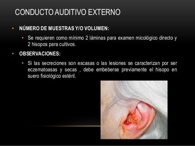 CONDUCTO AUDITIVO EXTERNO• NÚMERO DE MUESTRAS Y/O VOLUMEN:• Se requieren como mínimo 2 láminas para examen micológico dire...