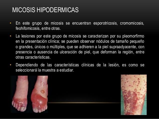 MICOSIS HIPODERMICAS• En este grupo de micosis se encuentran esporotricosis, cromomicosis,feohifomicosis, entre otras.• La...