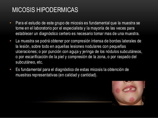 MICOSIS HIPODERMICAS• Para el estudio de este grupo de micosis es fundamental que la muestra setome en el laboratorio por ...