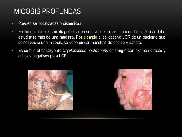MICOSIS PROFUNDAS• Pueden ser localizadas o sistemicas.• En todo paciente con diagnóstico presuntivo de micosis profunda s...