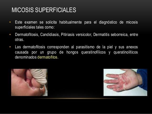 • Este examen se solicita habitualmente para el diagnóstico de micosissuperficiales tales como:• Dermatofitosis, Candidias...