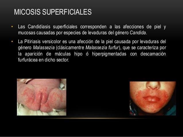 • Las Candidiasis superficiales corresponden a las afecciones de piel ymucosas causadas por especies de levaduras del géne...
