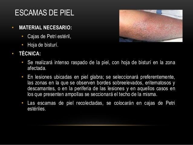 • MATERIAL NECESARIO:• Cajas de Petri estéril,• Hoja de bisturí.• TÉCNICA:• Se realizará intenso raspado de la piel, con h...
