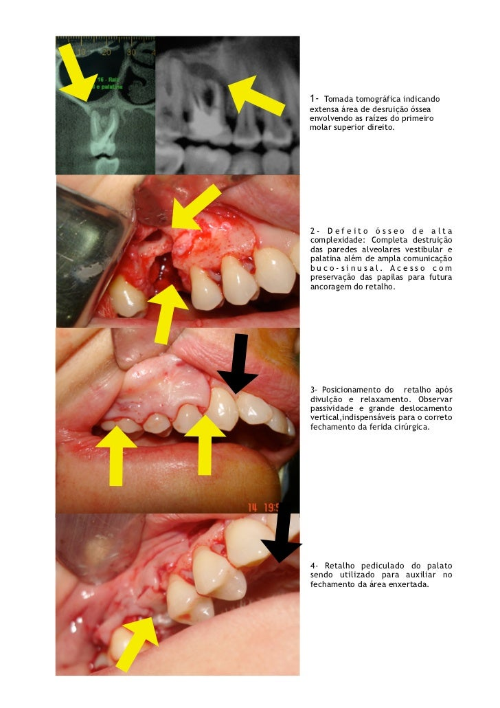 1- Tomada tomográfica indicandoextensa área de desruição ósseaenvolvendo as raízes do segundomolar superior direito.2- Def...