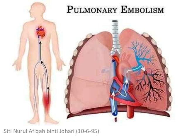 Pulmonary Embolism In Geriatrics Siti Nurul Afiqah Binti Johari 10 6 95