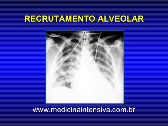 RECRUTAMENTO ALVEOLAR www.medicinaintensiva.com.br