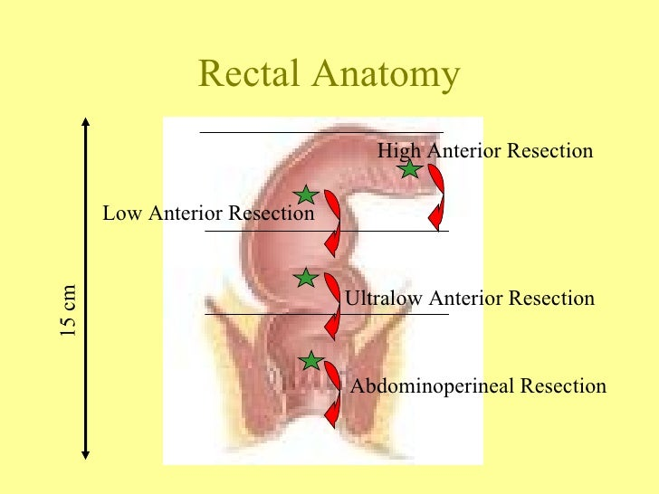 The Surgery for Rectal Cancer
