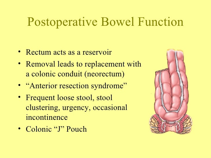 What Is Incontinence Of Stool Bowel Incontinence Causes