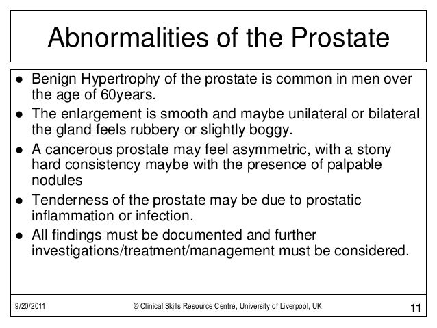 9/20/2011 © Clinical Skills Resource Centre, University of Liverpool, UK 11 Abnormalities of the Prostate  Benign Hypertr...