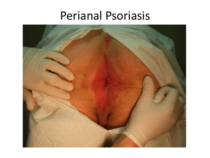 Painful burning irritation around the anus area