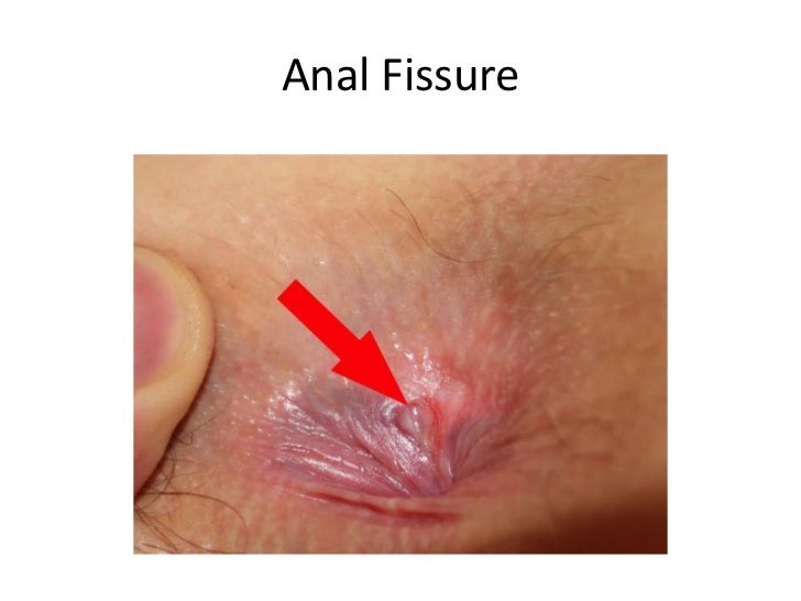 Anal fissure treatments