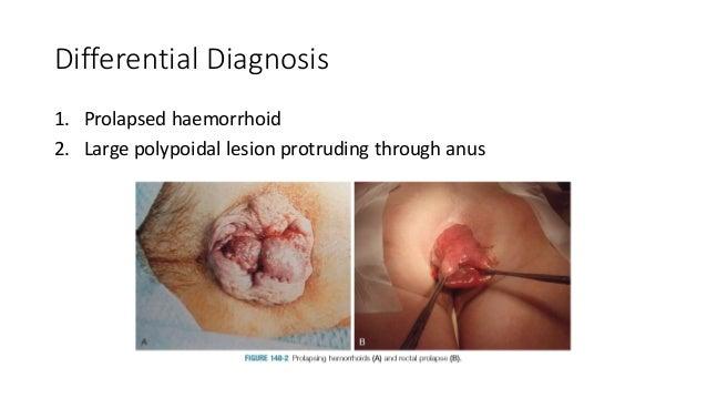 Prolapsing through anus