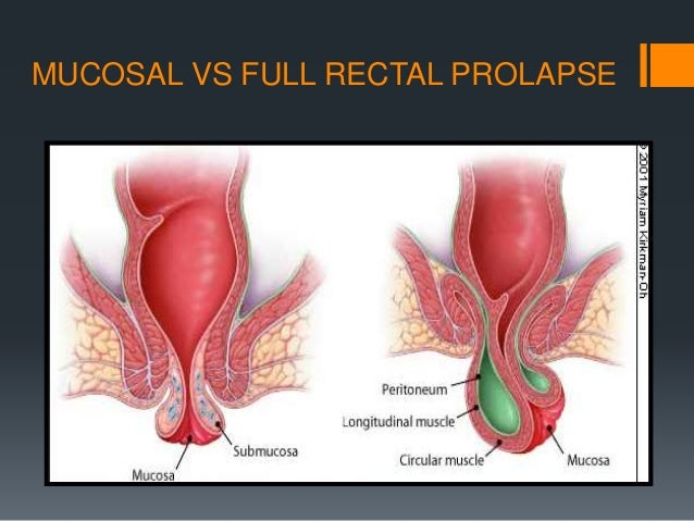 the gallery for gt rectal prolapse vs hemorrhoids