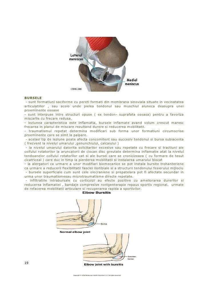 BURSELE - sunt formatiuni saciforme cu pereti formati din membrana sinoviala situate in vecinatateaarticulatiilor , sau ac...