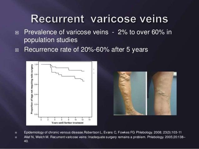 recurrent varicose veins