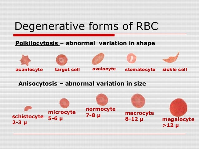 Red Blood cell pathology