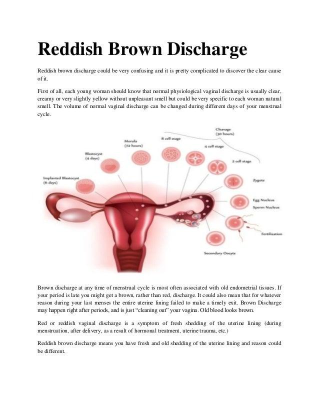 Reddish brown discharge
