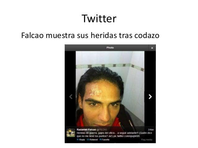 Twitter Falcao muestra sus heridas tras codazo