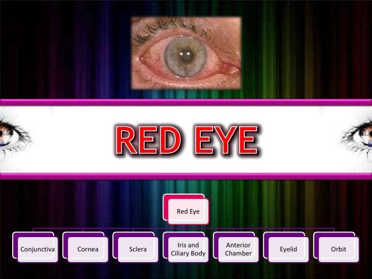 RED EYE<br />