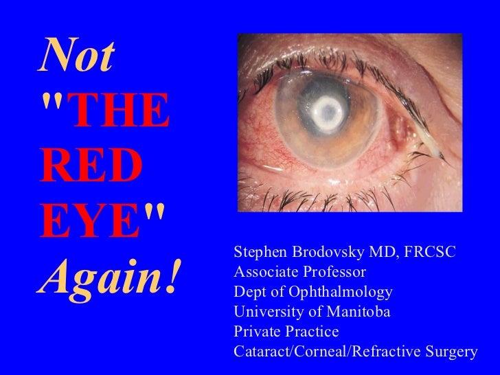 "Not "" THE  RED EYE "" Again! Stephen Brodovsky MD, FRCSC Associate Professor Dept of Ophthalmology University of ..."