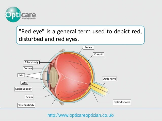 Red eye different names like pink eye ccuart Choice Image