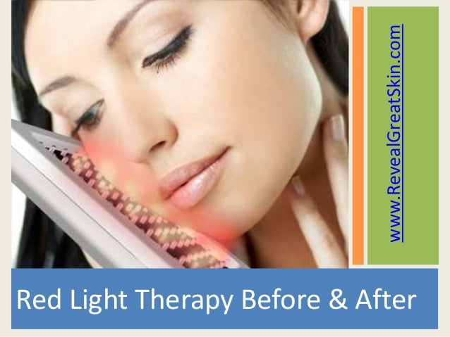 Astonishing Red Light Therapy Before And After Shots