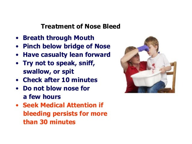remedy for nose bleeding due to heat