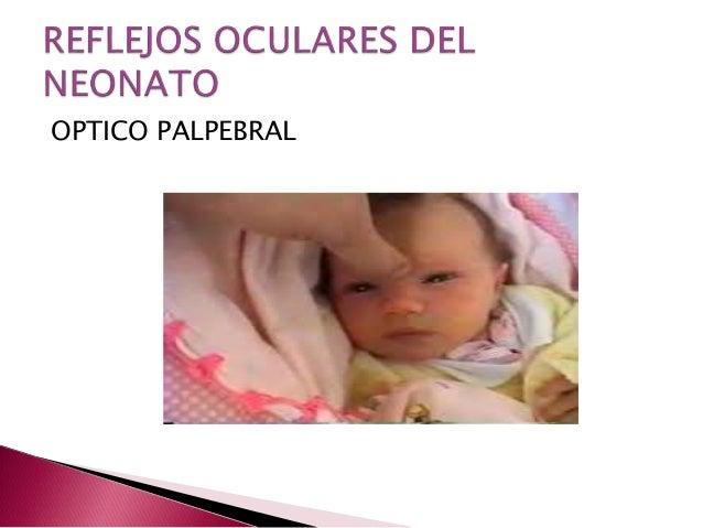 REFLEJO PALPEBRAL PDF DOWNLOAD