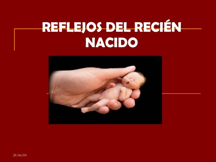 REFLEJOS DEL RECIÉN NACIDO 29/06/09
